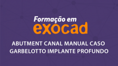 Abutment Canal Manual